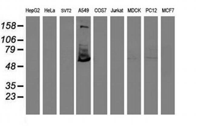 TULP3 Mouse anti-Human, Clone: OTI4E5, liquid, TrueMAB  100 µL; Unconjugated
