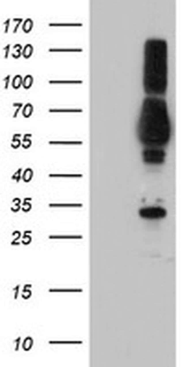 TULP3 Mouse anti-Human, Clone: OTI6H4, liquid, TrueMAB  100 µL; Unconjugated