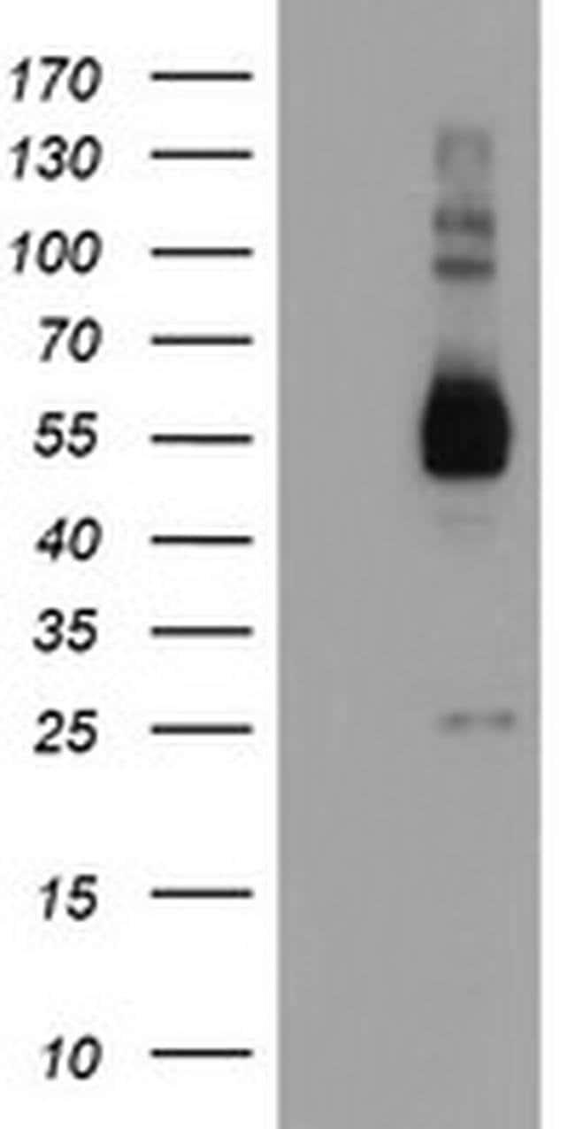 TULP3 Mouse anti-Human, Clone: OTI7B8, liquid, TrueMAB  100 µL; Unconjugated