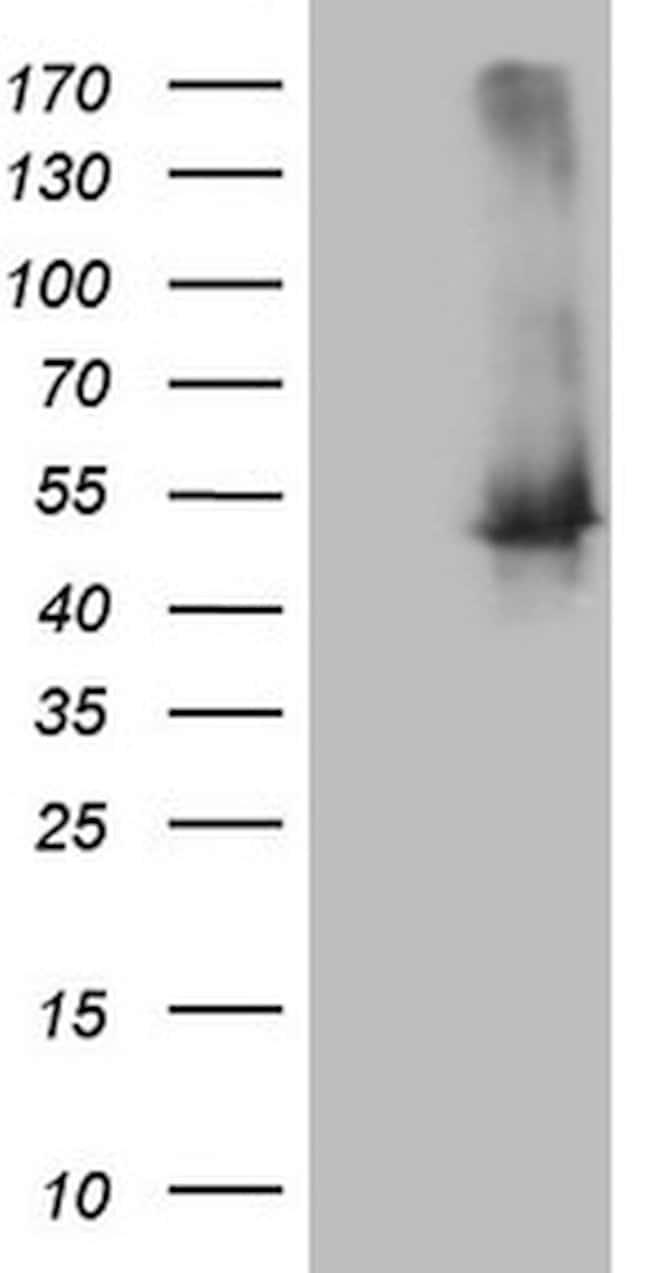 TWF1 Mouse anti-Human, Clone: OTI5C11, lyophilized, TrueMAB  100 µg;