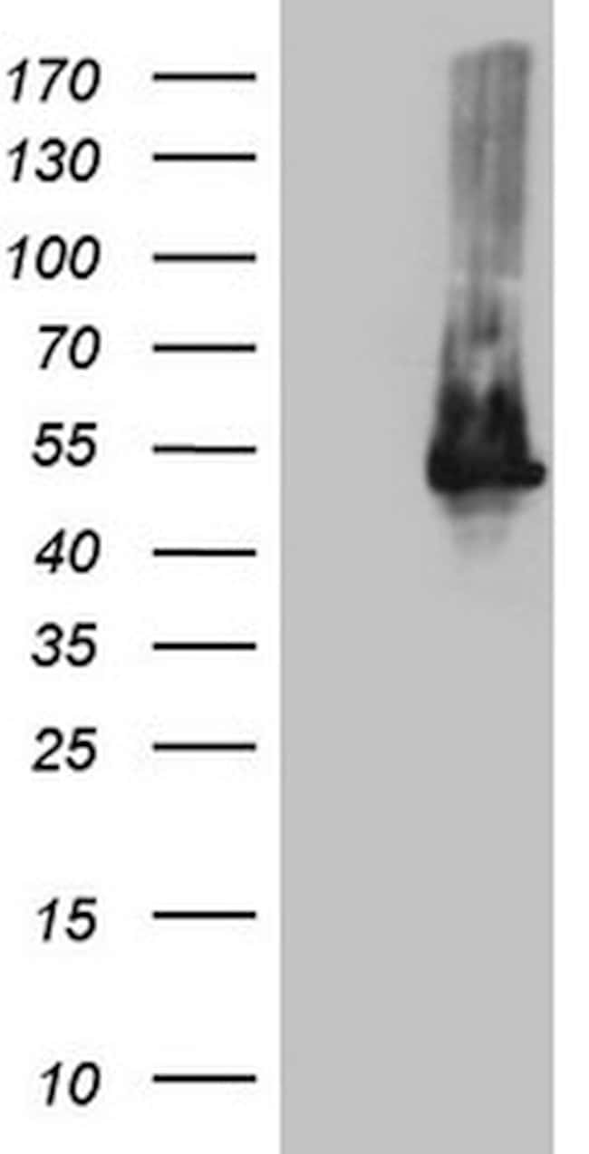 TWF1 Mouse anti-Human, Clone: OTI1C2, lyophilized, TrueMAB  100 µg;
