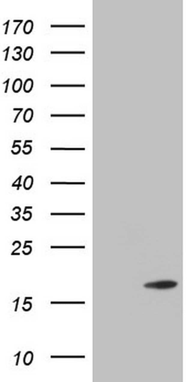 TWIST2 Mouse anti-Human, Clone: OTI6H10, lyophilized, TrueMAB  100 µg;