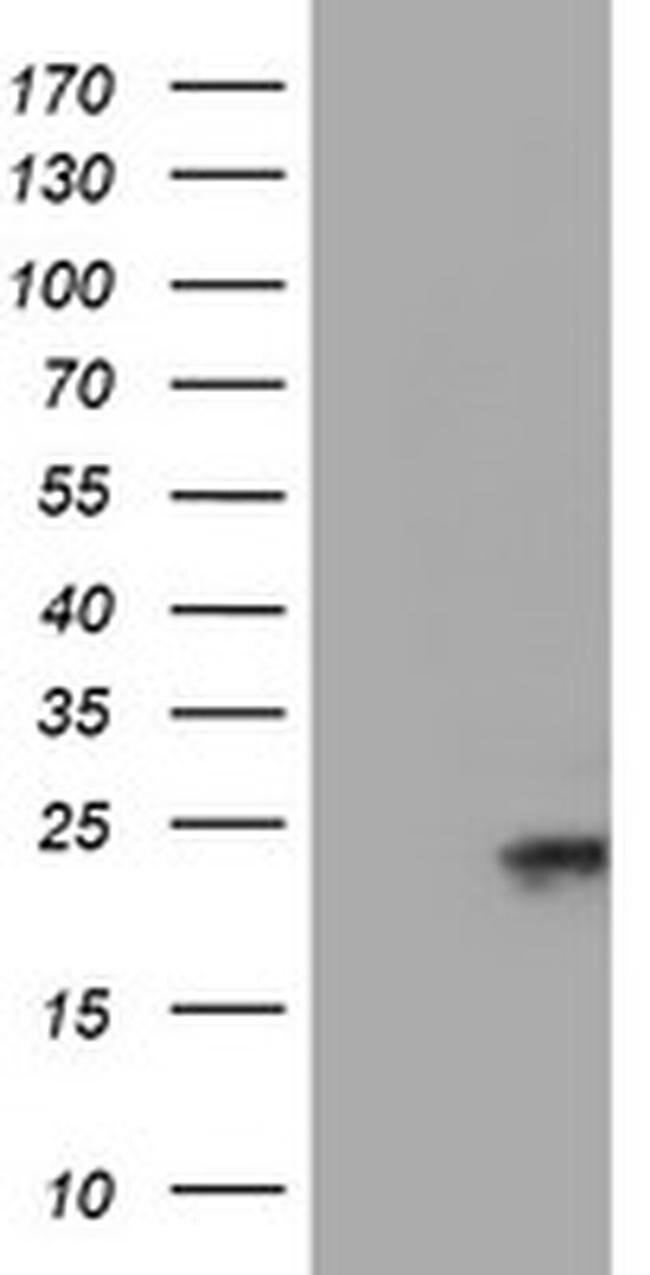 UBE2E3 Mouse anti-Human, Clone: OTI4B4, liquid, TrueMAB  100 µL; Unconjugated