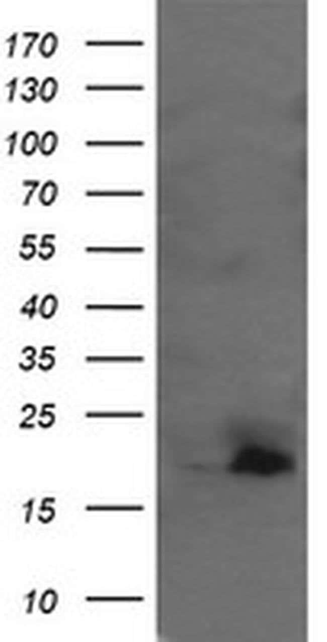 UBE2G2 Mouse anti-Canine, Human, Mouse, Clone: OTI1B10, liquid, TrueMAB
