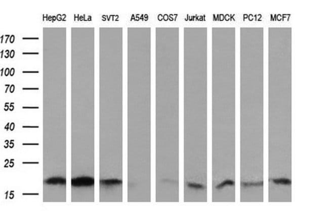 UBE2G2 Mouse anti-Human, Clone: OTI4E12, liquid, TrueMAB  100 µL;