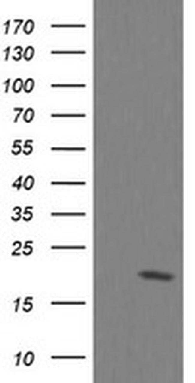 UBE2G2 Mouse anti-Canine, Human, Mouse, Rat, Clone: OTI1D2, liquid, TrueMAB