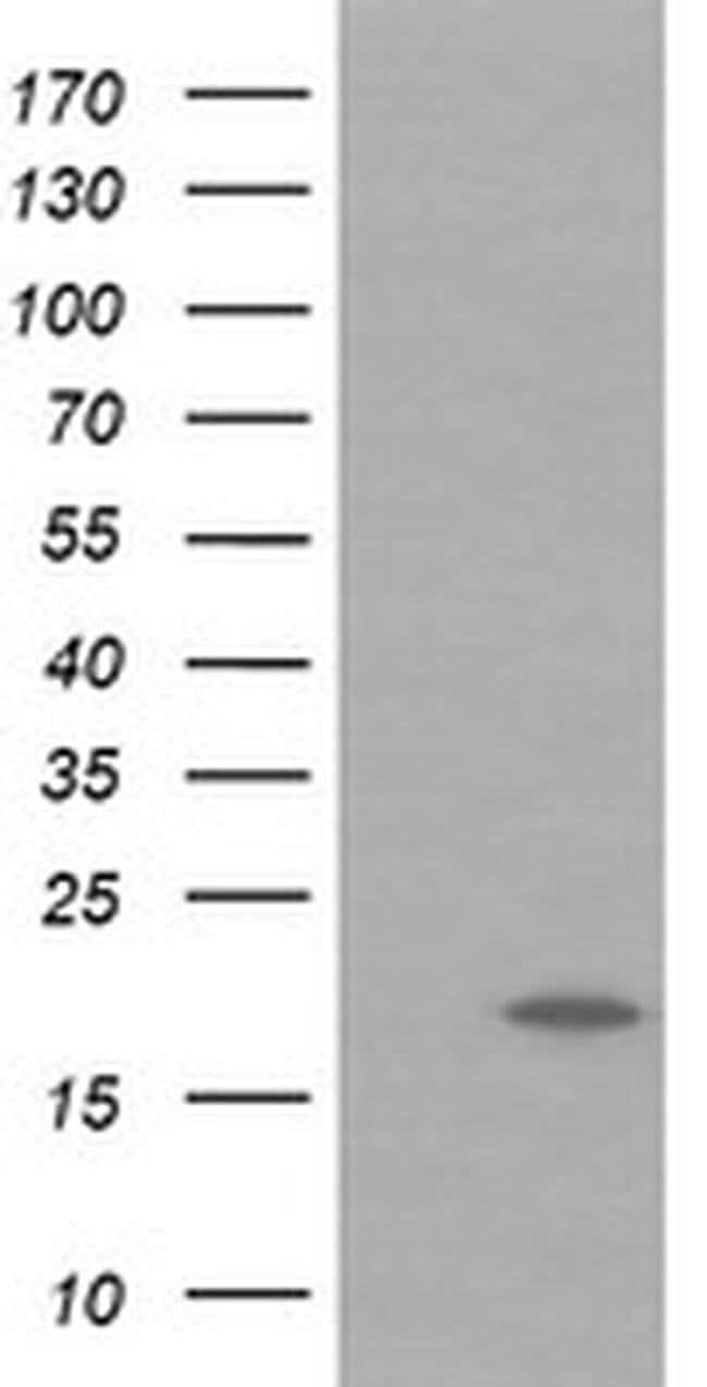 UBE2G2 Mouse anti-Canine, Human, Mouse, Rat, Clone: OTI1G10, liquid, TrueMAB