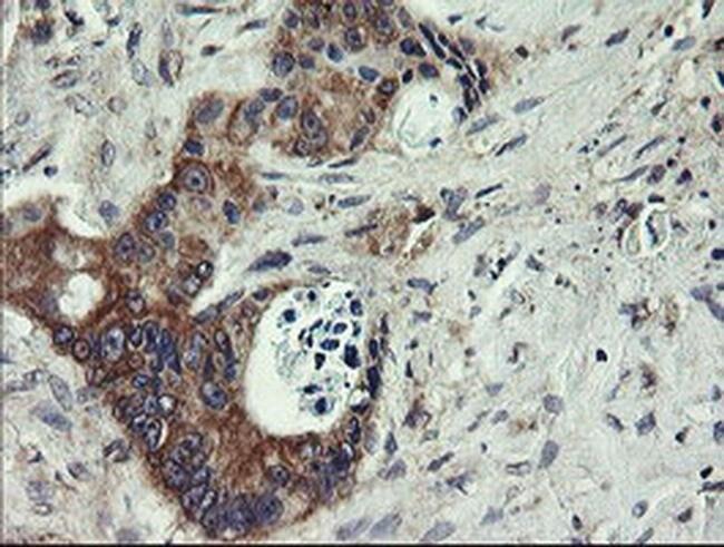 UBE2J1 Mouse anti-Human, Clone: OTI3E6, liquid, TrueMAB  100 µL; Unconjugated