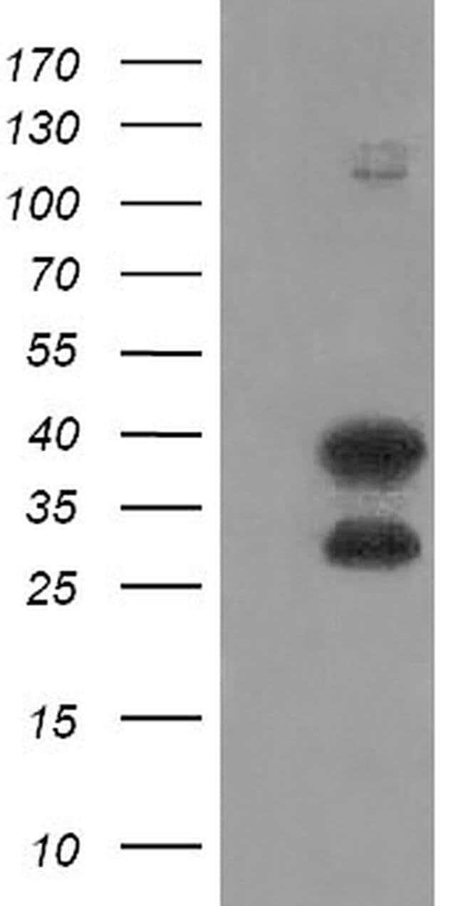 UBE2J1 Mouse anti-Human, Clone: OTI1H10, liquid, TrueMAB  100 µL;