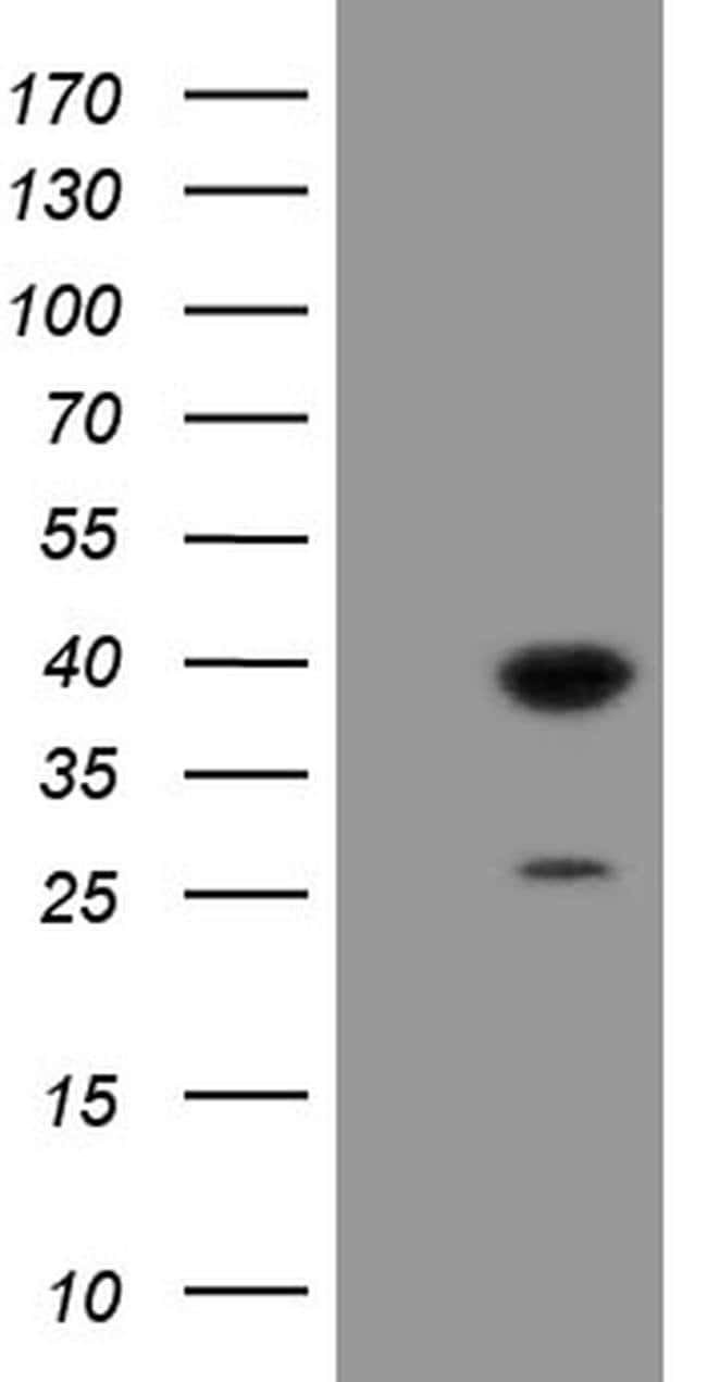 UBE2J1 Mouse anti-Human, Clone: OTI1C7, liquid, TrueMAB  100 µL; Unconjugated