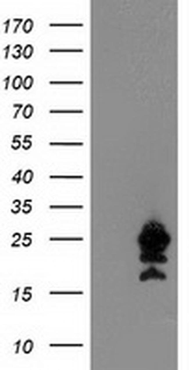 UBE2M Mouse anti-Canine, Human, Mouse, Clone: OTI2D9, liquid, TrueMAB