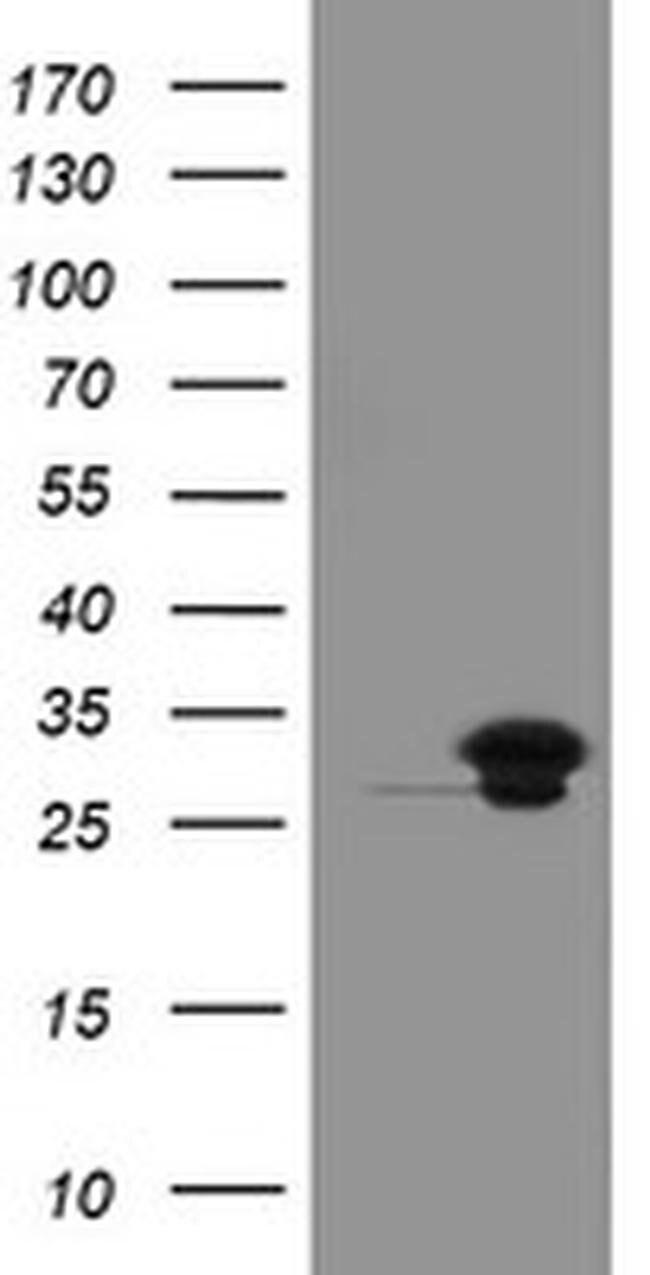 UBE2S Mouse anti-Human, Clone: OTI1B5, liquid, TrueMAB  100 µL; Unconjugated