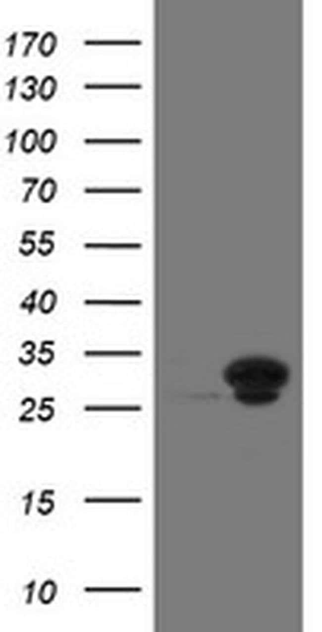 UBE2S Mouse anti-Human, Clone: OTI4B8, liquid, TrueMAB  100 µL; Unconjugated