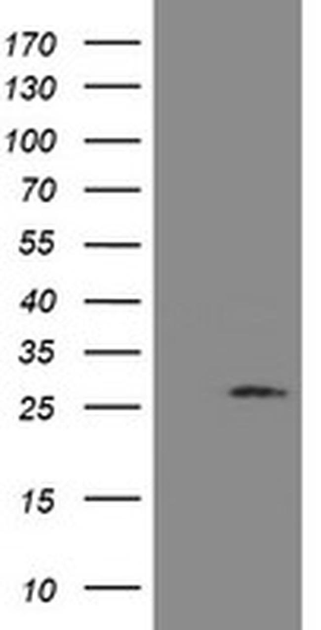UBE2S Mouse anti-Human, Clone: OTI4G2, liquid, TrueMAB  100 µL; Unconjugated