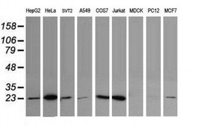 UBE2S Mouse anti-Human, Mouse, Clone: OTI4H3, liquid, TrueMAB  100 µL;