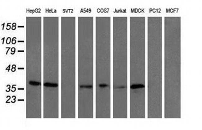UBXN2B Mouse anti-Canine, Human, Clone: OTI2E8, liquid, TrueMAB  100 µL;