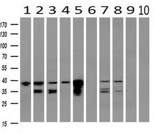 UBXN2B Mouse anti-Canine, Human, Clone: OTI3H8, liquid, TrueMAB  100 µL;