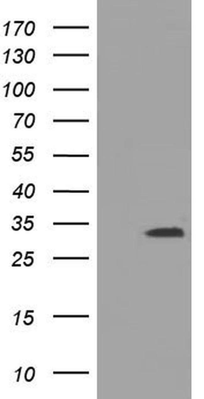 UCK1 Mouse anti-Human, Clone: OTI4H1, liquid, TrueMAB  100 µL; Unconjugated