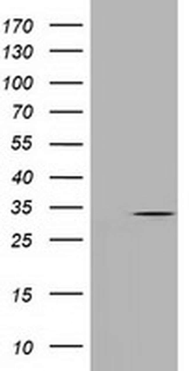 UCK1 Mouse anti-Human, Clone: OTI1A12, liquid, TrueMAB  100 µL; Unconjugated