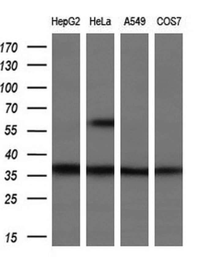 UCK1 Mouse anti-Human, Clone: OTI5E9, liquid, TrueMAB  100 µL; Unconjugated