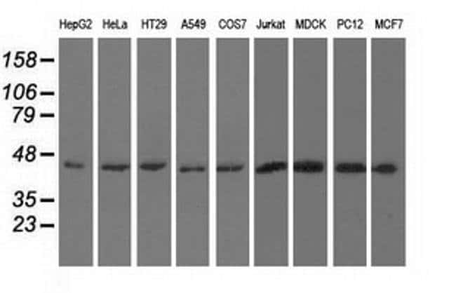 UHMK1 Mouse anti-Canine, Human, Rat, Clone: OTI5E10, liquid, TrueMAB  100