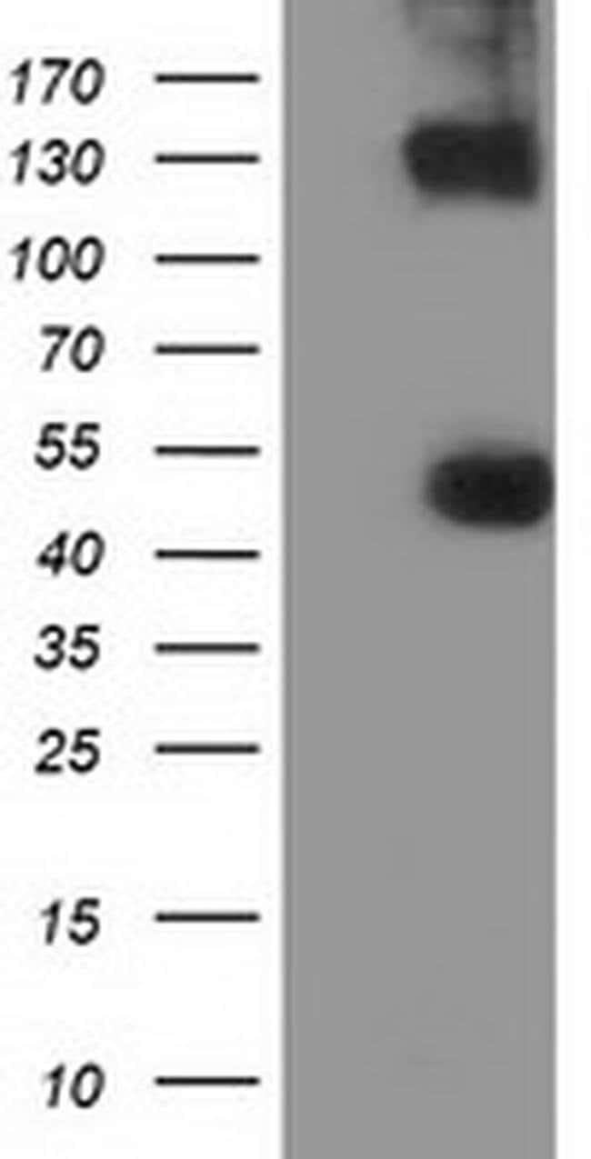 UHMK1 Mouse anti-Human, Clone: OTI2H4, liquid, TrueMAB  100 µL; Unconjugated