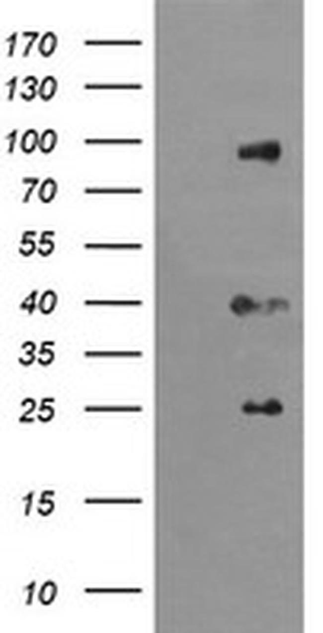 USP16 Mouse anti-Human, Clone: OTI1B4, liquid, TrueMAB  100 µL; Unconjugated