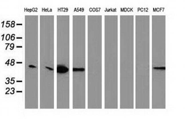 VASP Mouse anti-Human, Clone: OTI1H8, liquid, TrueMAB  100 µL; Unconjugated