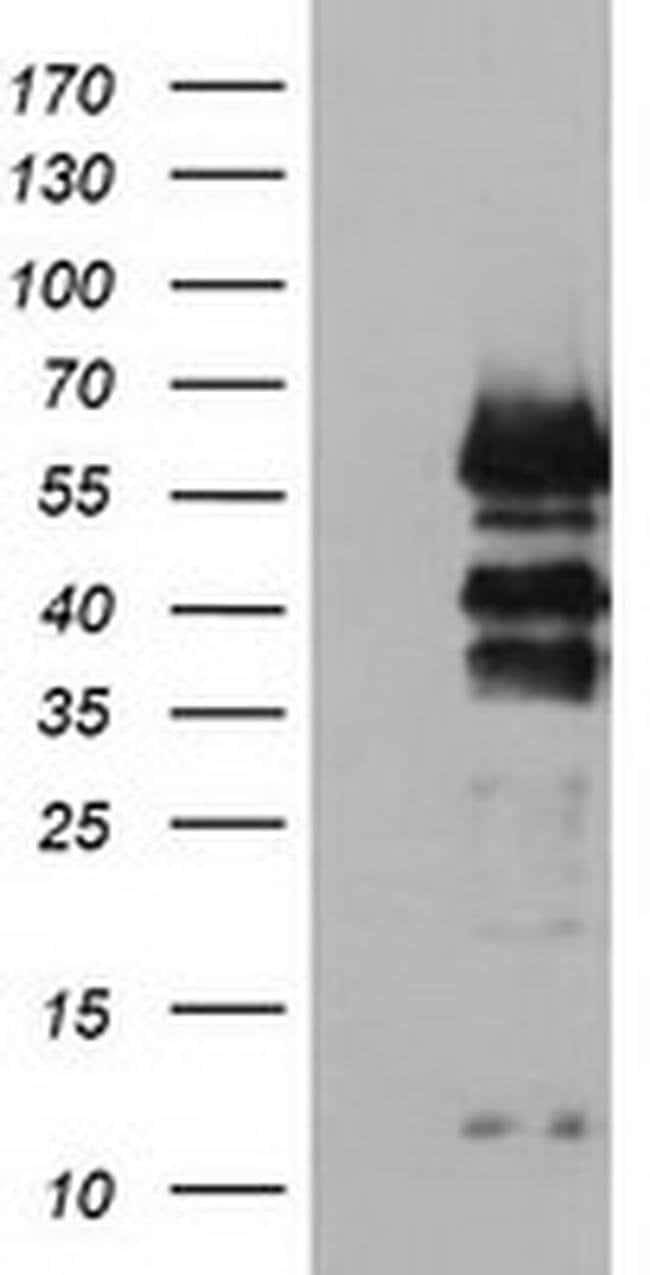 VASP Mouse anti-Human, Clone: OTI1C3, liquid, TrueMAB  100 µL; Unconjugated