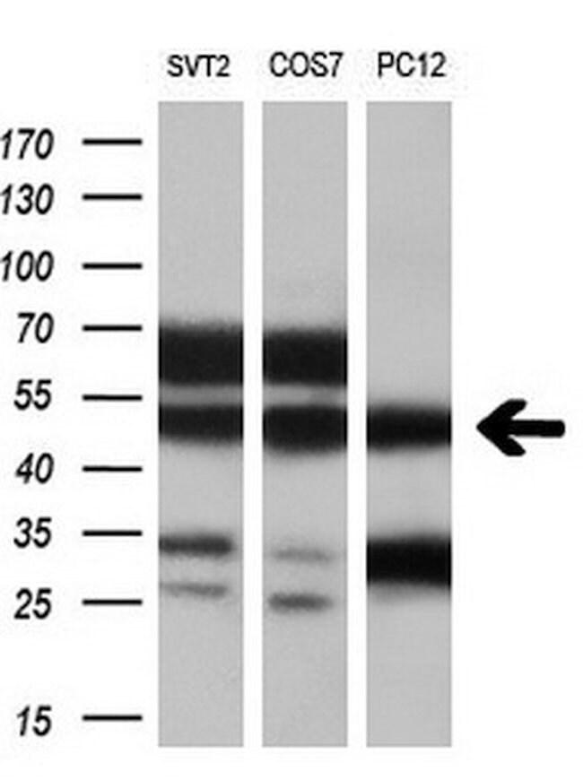 VAT1L Mouse anti-Human, Clone: OTI1H3, liquid, TrueMAB  100 µL; Unconjugated