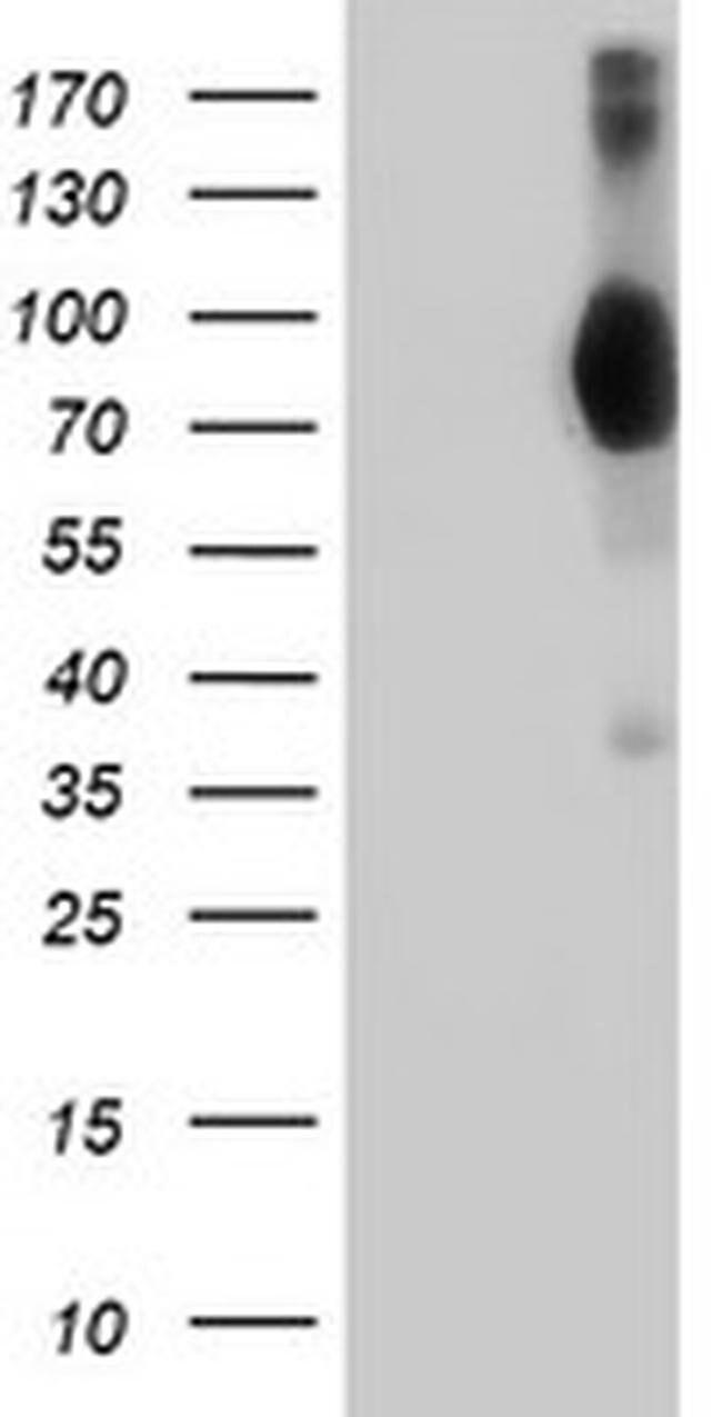 VCAM1 Mouse anti-Human, Clone: OTI5B12, liquid, TrueMAB  100 µL; Unconjugated