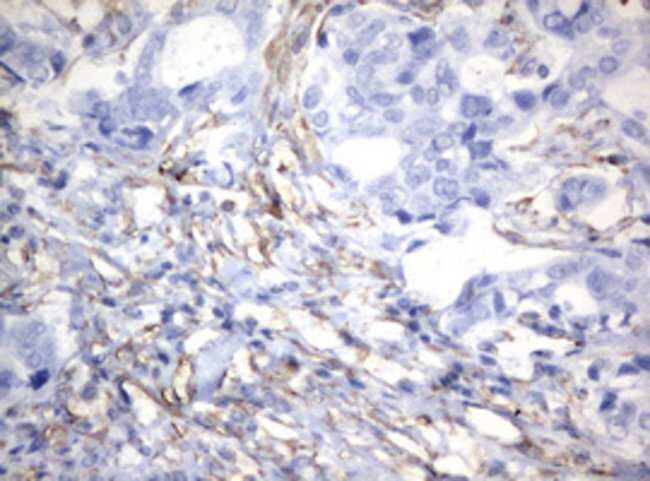 VIM Mouse anti-Human, Clone: OTI5D7, lyophilized, TrueMAB  100 µg;