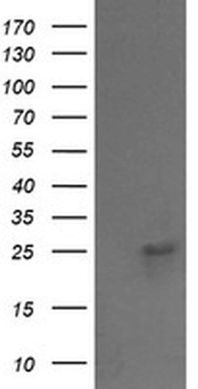 VPS28 Mouse anti-Canine, Human, Mouse, Rat, Clone: OTI1A8, liquid, TrueMAB