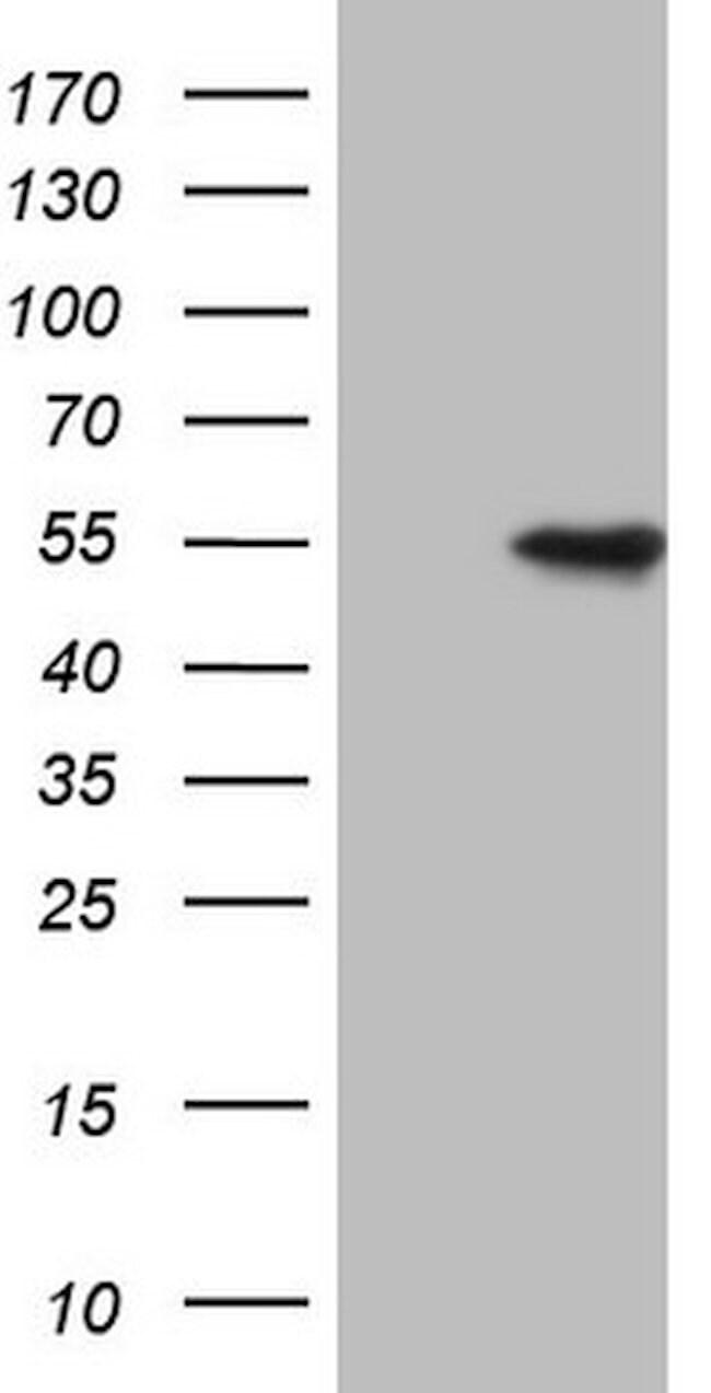 VRK1 Mouse anti-Human, Clone: OTI2E10, lyophilized, TrueMAB  100 µg;