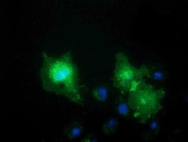 VSIG2 Mouse anti-Human, Clone: OTI1F8, liquid, TrueMAB  100 µL; Unconjugated