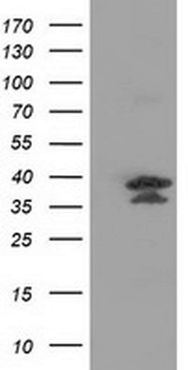 VSIG2 Mouse anti-Human, Clone: OTI5A10, liquid, TrueMAB  100 µL; Unconjugated
