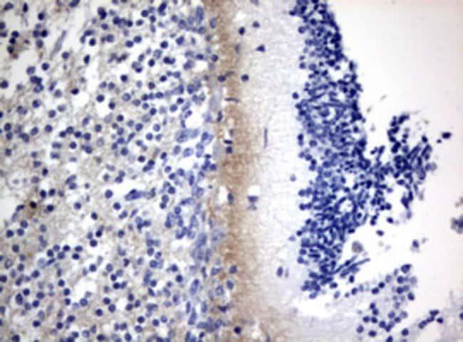 VSNL1 Mouse anti-Human, Clone: OTI7E11, lyophilized, TrueMAB  100 µg;