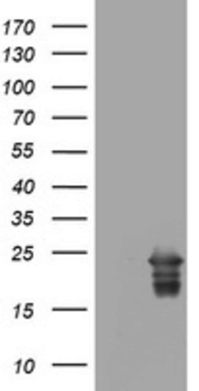 VSNL1 Mouse anti-Human, Clone: OTI7E12, lyophilized, TrueMAB  100 µg;
