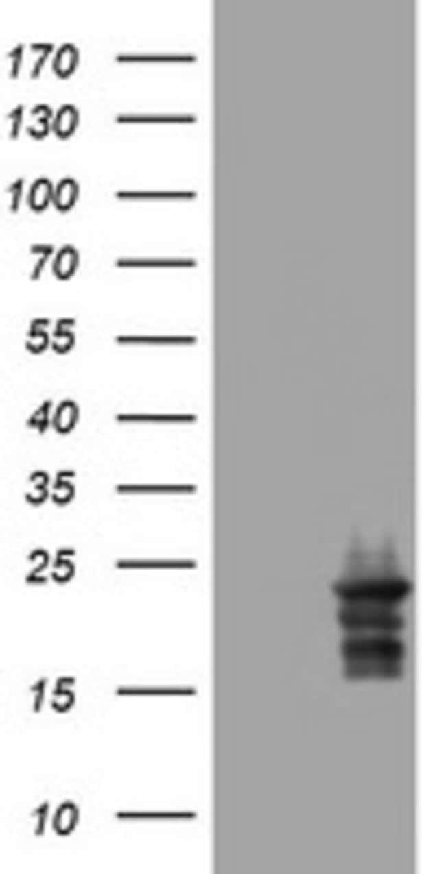VSNL1 Mouse anti-Human, Clone: OTI4C2, lyophilized, TrueMAB  100 µg;