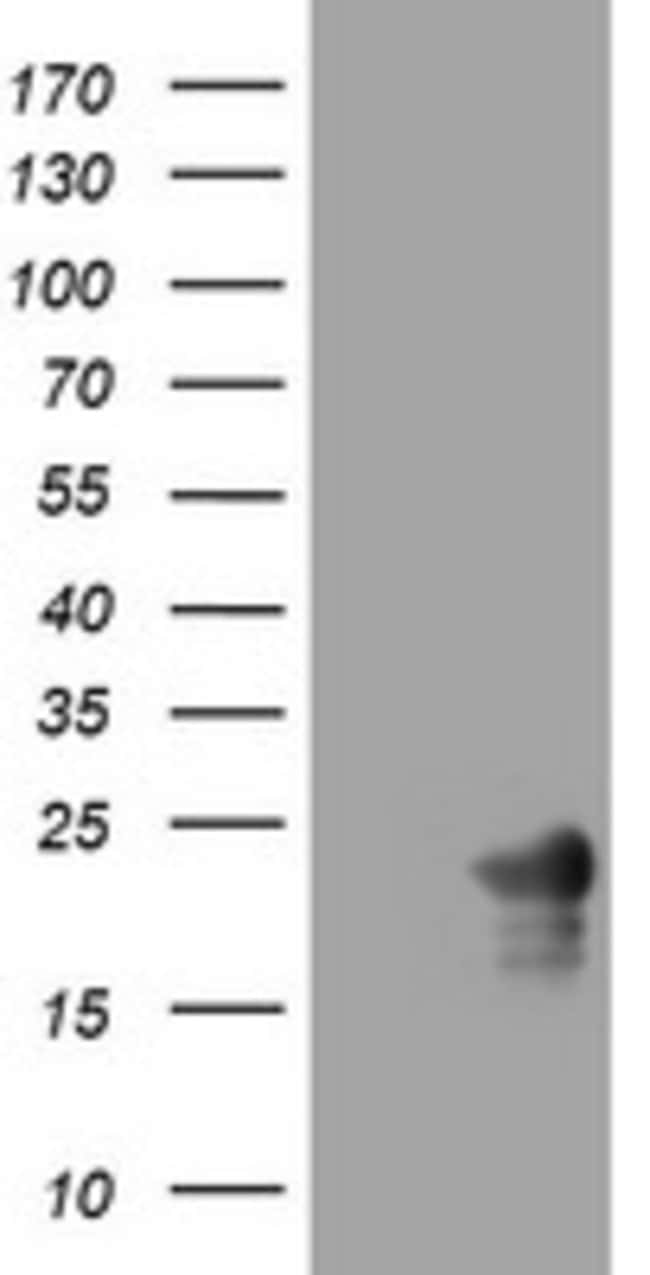 VSNL1 Mouse anti-Human, Clone: OTI2B10, lyophilized, TrueMAB  100 µg;