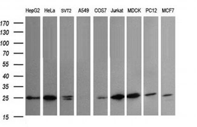 VTI1A Mouse anti-Canine, Human, Mouse, Rat, Clone: OTI1F4, liquid, TrueMAB