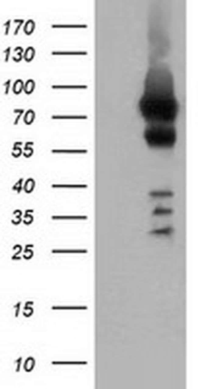 VWA5A Mouse anti-Human, Clone: OTI2G7, liquid, TrueMAB  100 µL; Unconjugated