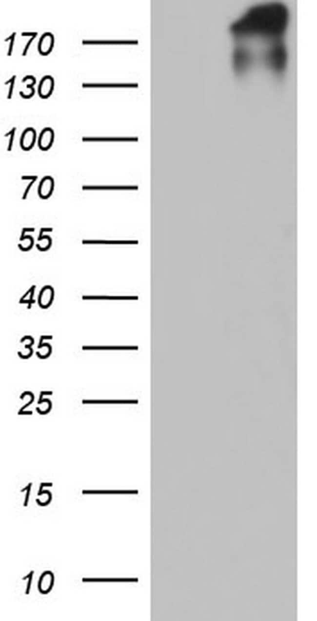 VWF Mouse anti-Human, Clone: OTI1H2, lyophilized, TrueMAB  100 µg;