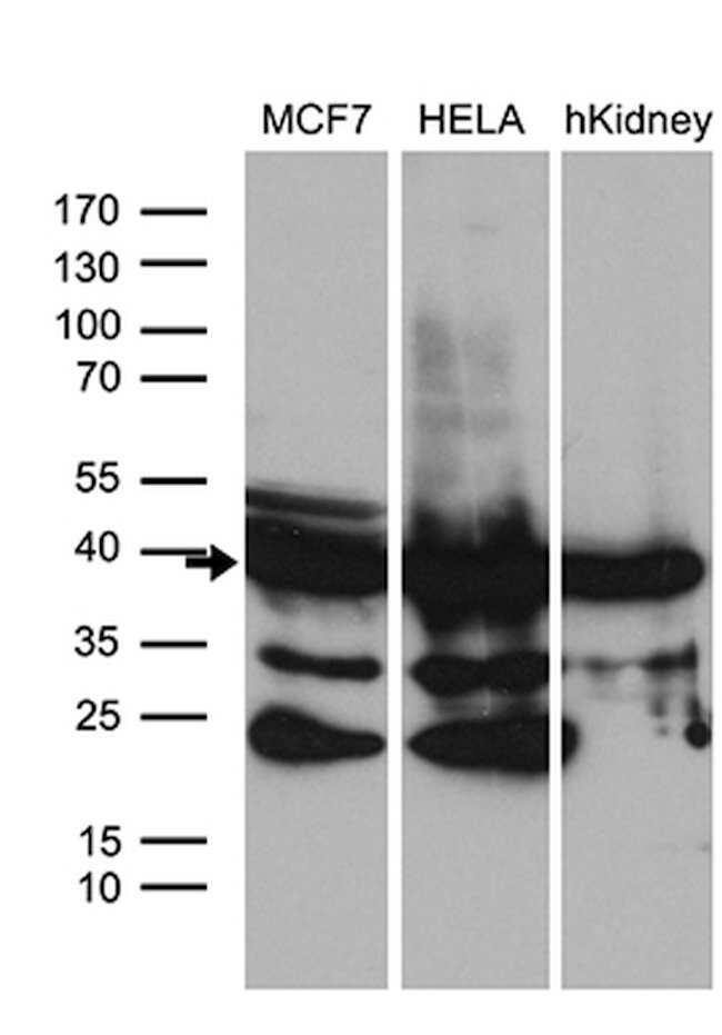 WDR92 Mouse anti-Human, Clone: OTI2F2, lyophilized, TrueMAB  100 µg;