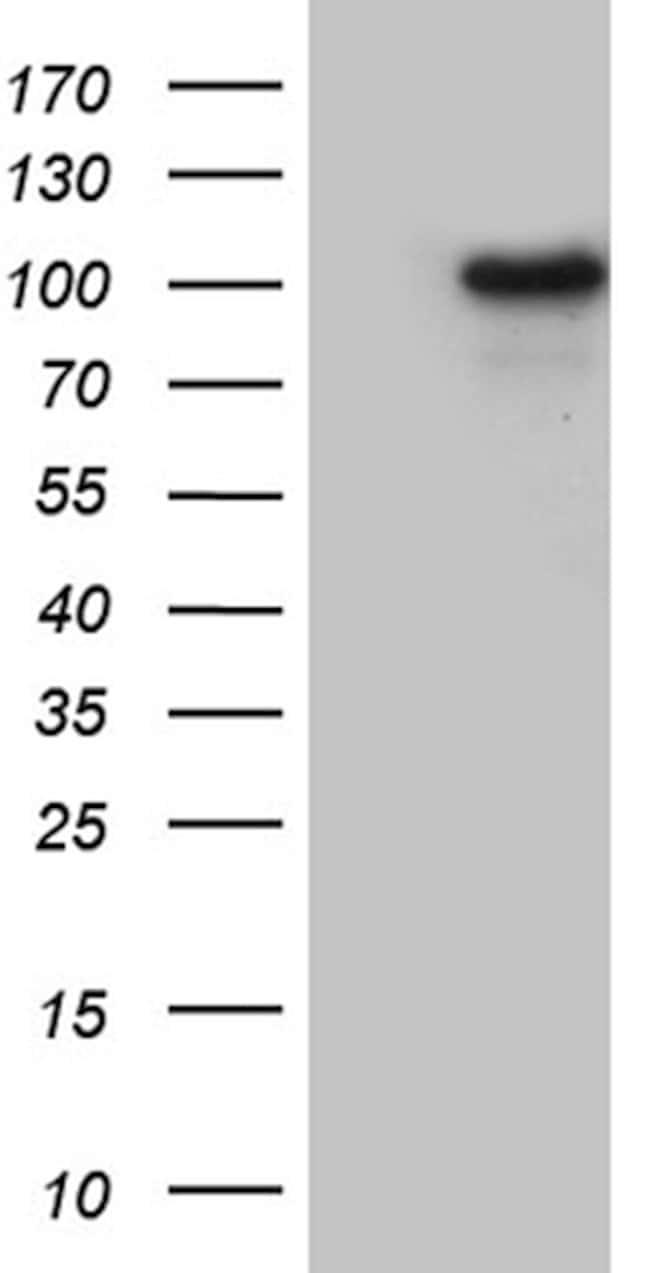 WHSC1L1 Mouse anti-Human, Clone: OTI6A12, lyophilized, TrueMAB  100 µg;