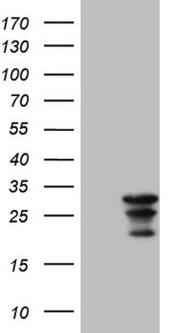 WIBG Mouse anti-Human, Clone: OTI11C5, lyophilized, TrueMAB  100 µg;