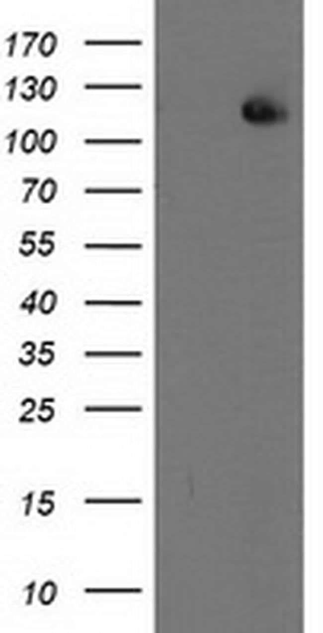 XPF Mouse anti-Human, Mouse, Clone: OTI4E11, liquid, TrueMAB  100 µL;