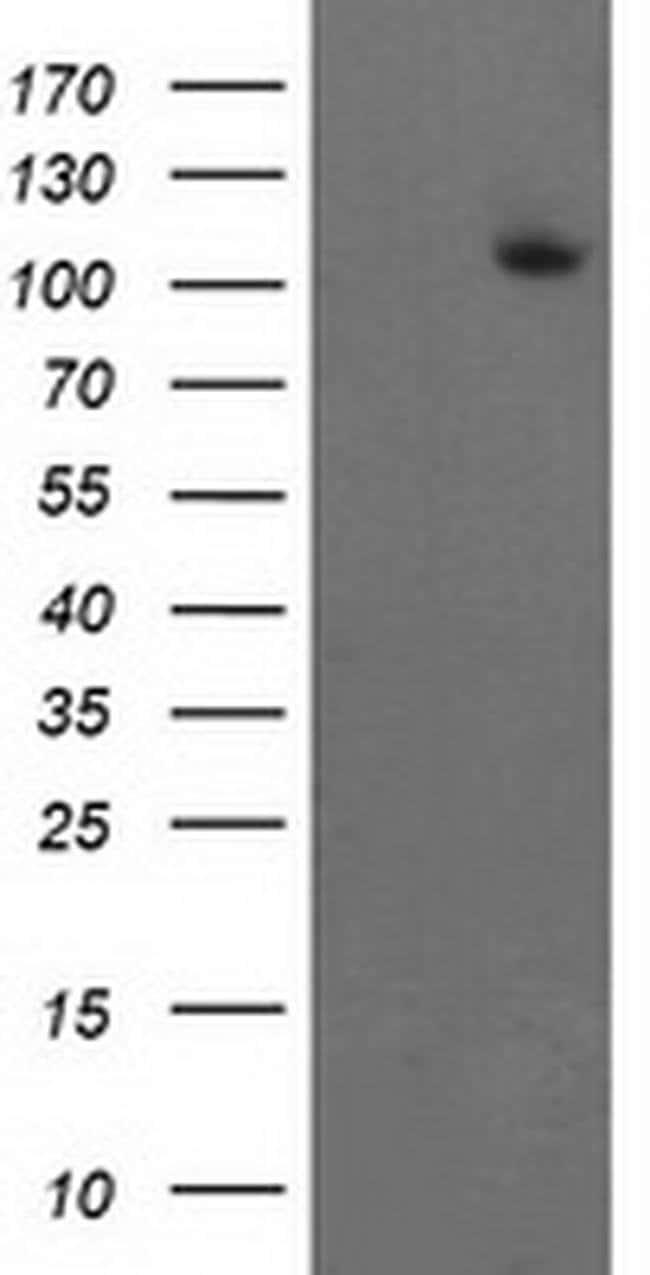 XPF Mouse anti-Human, Clone: OTI2C2, liquid, TrueMAB  100 µL; Unconjugated