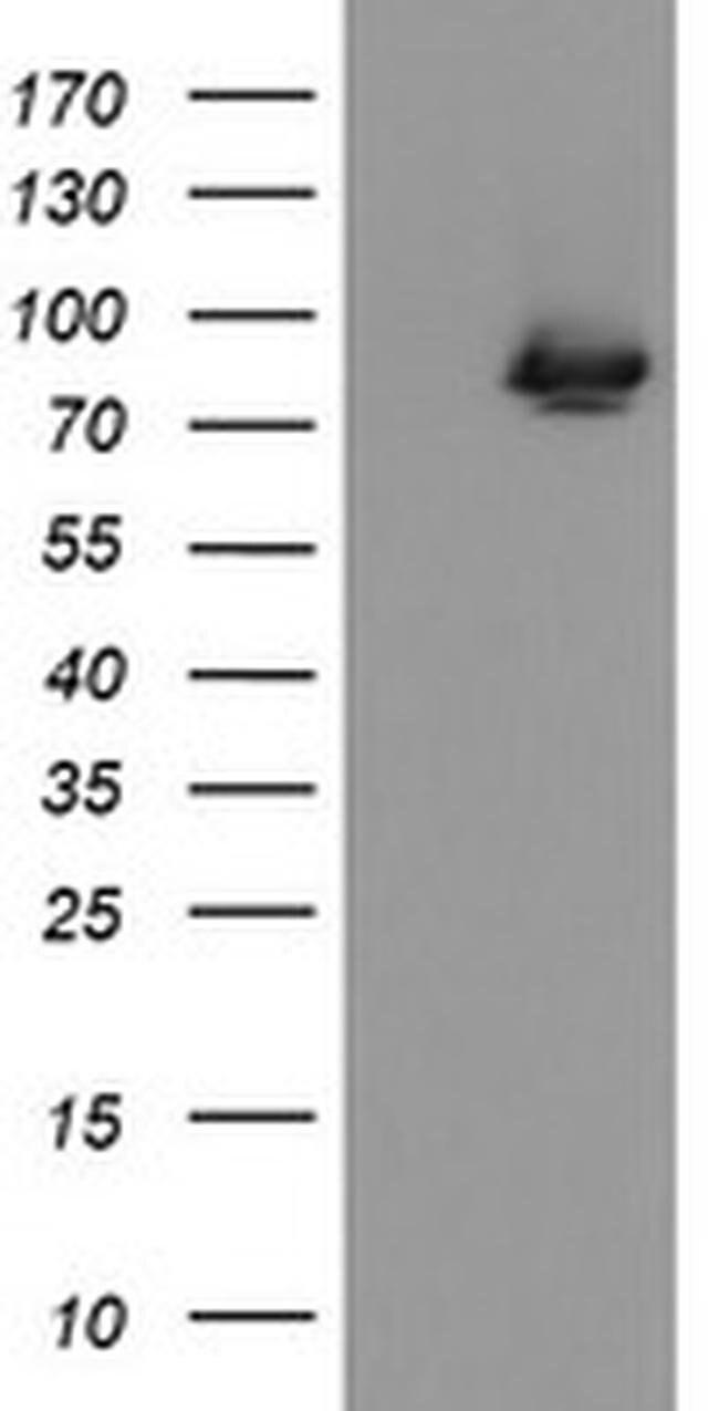 ZBED1 Mouse anti-Human, Clone: OTI2E5, liquid, TrueMAB  100 µL; Unconjugated
