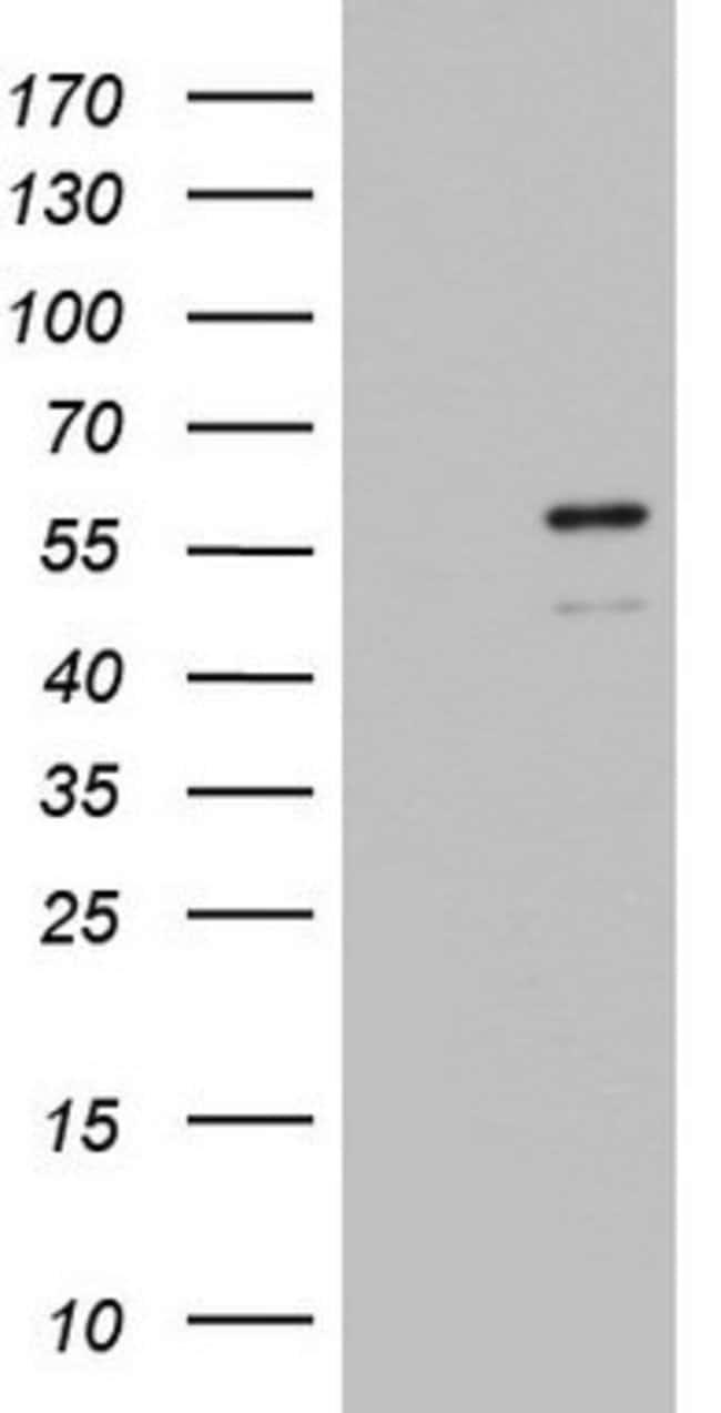 ZBTB37 Mouse anti-Human, Clone: OTI1D7, lyophilized, TrueMAB  100 µg;